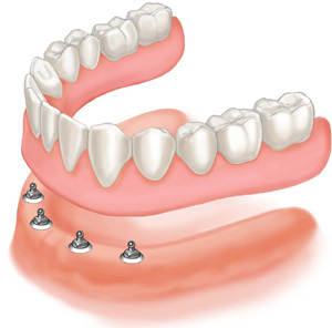 Mini Dental Implant Dentures - Dr. Joe Stucky